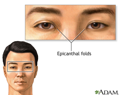 epicanthal folds, aka asian eyes  image source: https://medlineplus.gov/ency/images/ency/fullsize/9298.jpg