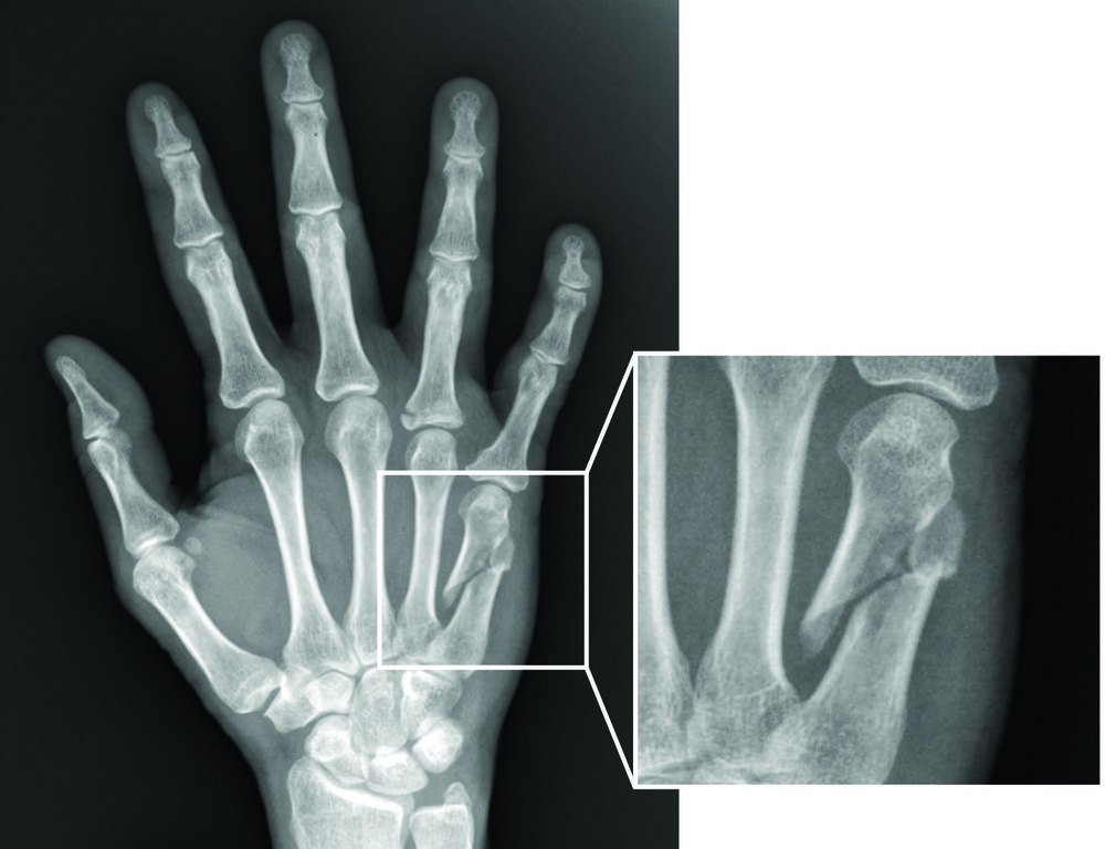 Hand Fracture Clinic