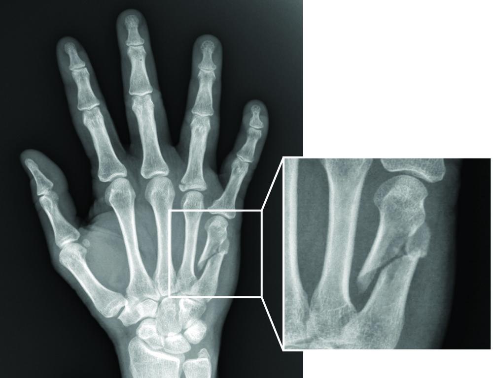 Metacarpal fracture