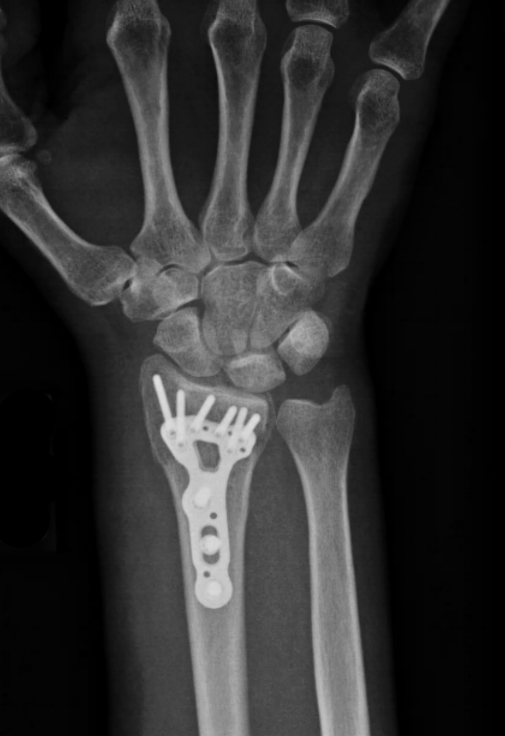 X-ray of a distal radius fracture after surgical treatment.