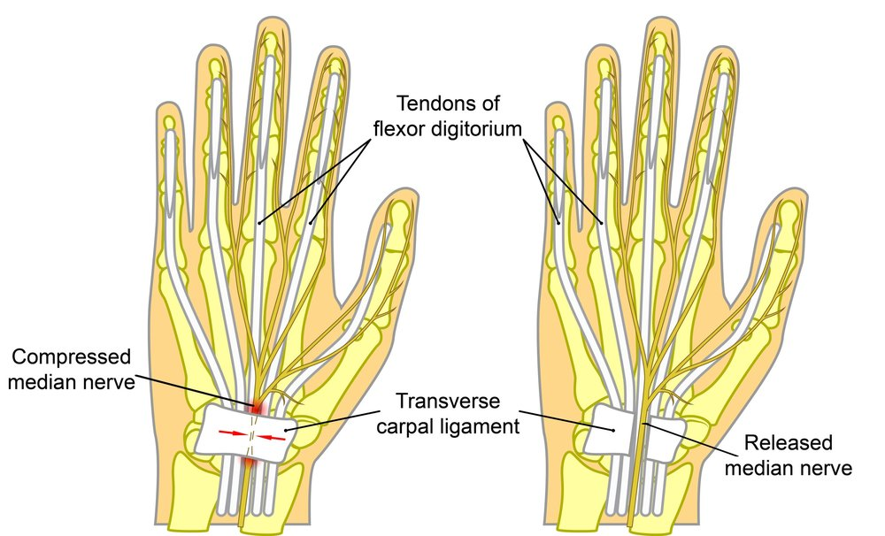 Before and after picture of carpal tunnel surgery.