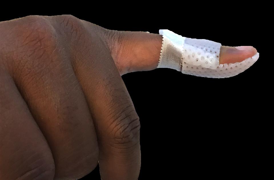 Mallet finger with splint