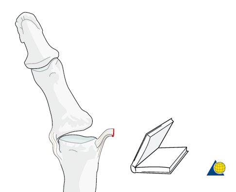 """Tear of the thumb UCL results in the joint """"booking open"""" during pinching. Image from  AO Foundation"""