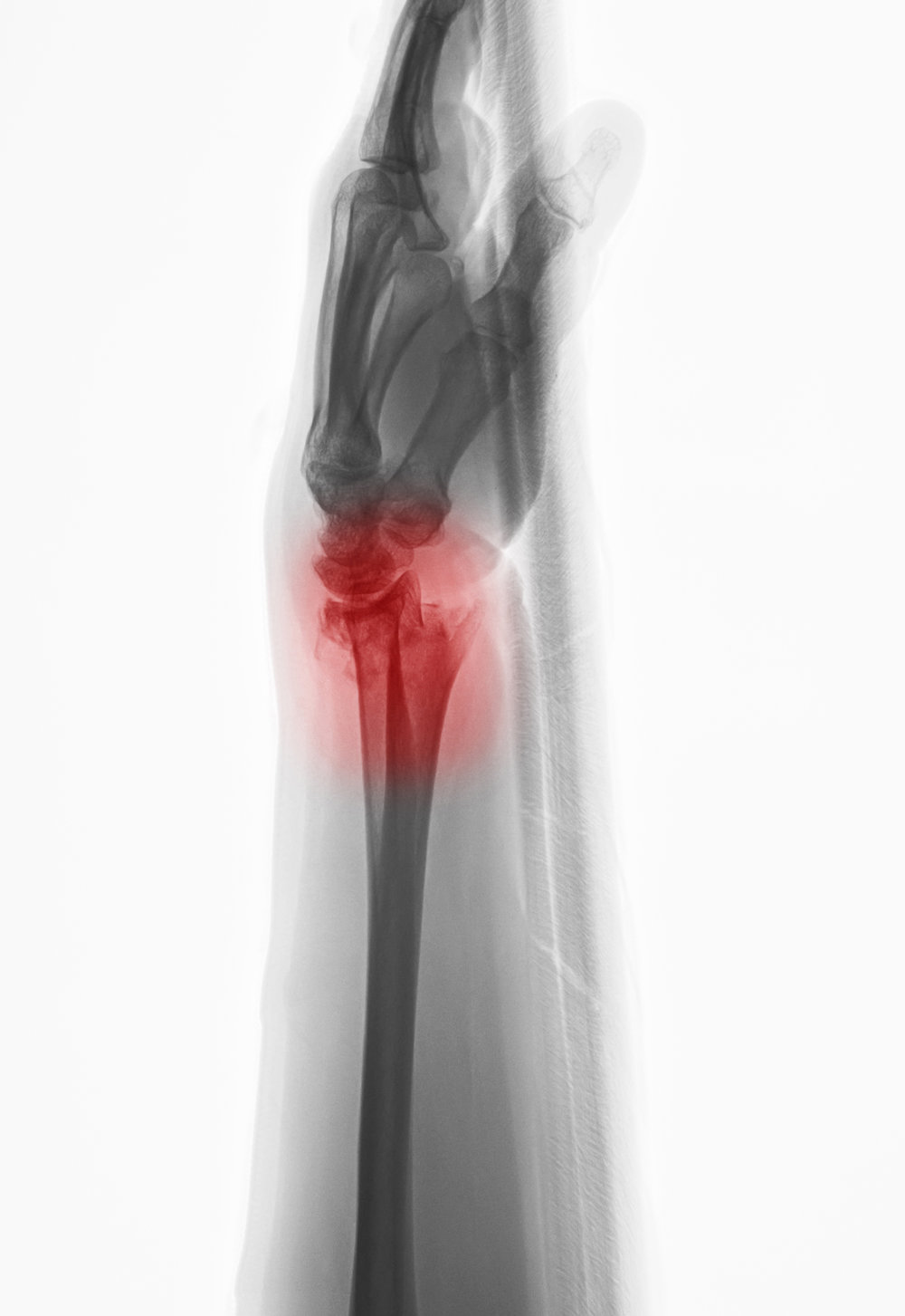 Lateral view of a distal radius fracture