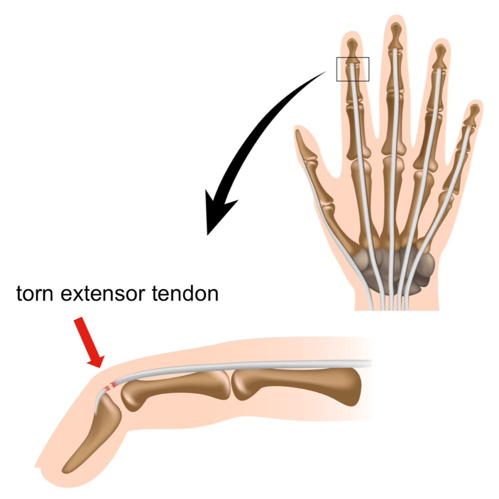 A mallet finger is a deformity of the fingertip resulting in an inability to fully extend, or straighten, the digit. A cut to the back of the finger may also cause a disruption of the extensor tendon.