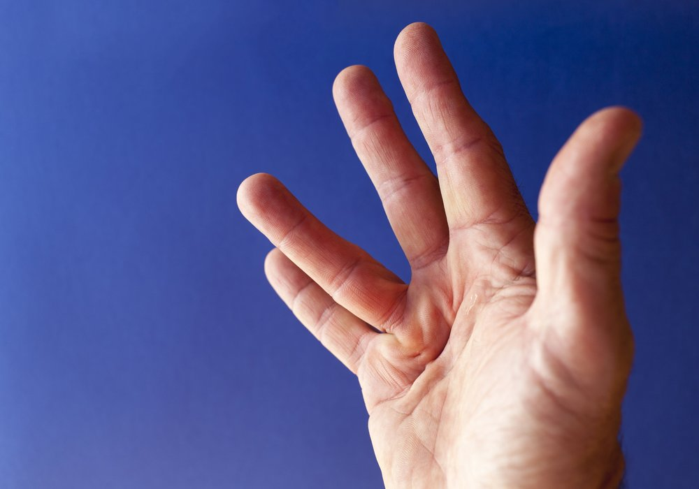 "An abnormal growth of tissues in the palm of your hand, either in the form of ""nodules"" in the palm or ""cords"" in line with the fingers is known as Dupuytren contracture. Over time, these tissues can contract and result in the finger curling down into the palm."