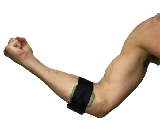A counterforce strap decreases tension on the site of the tendon tear, which can decrease pain and facilitate healing