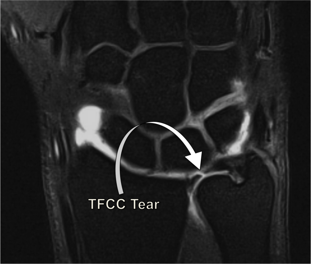 TFCC Tear.  On MRI, a normal TFCC is a black band of tissue connecting the radius and ulna bones. This MRI arthrogram shows a tear in the TFCC, allowing the dye (white fluid on MRI) to leak out of the joint.