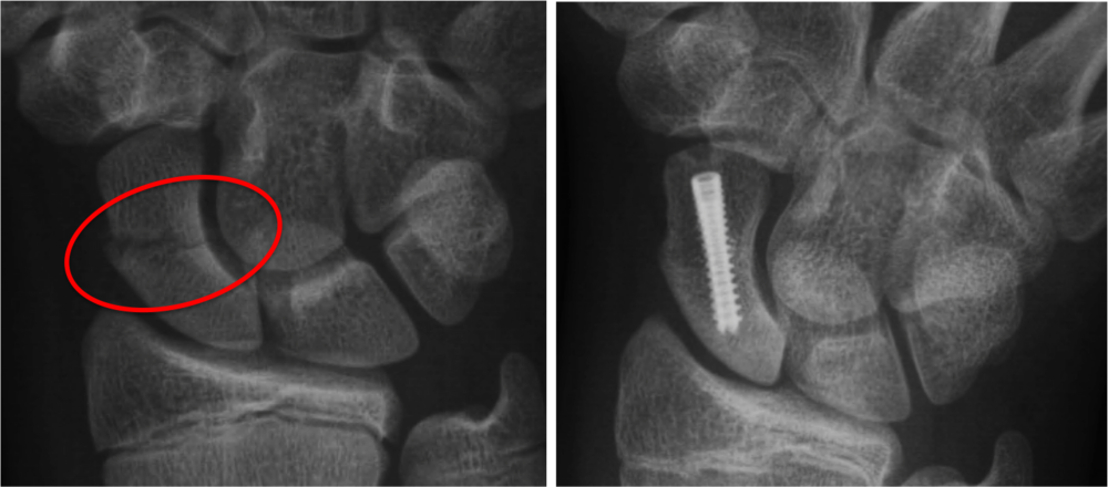 Left :Broken scaphoid bone with gapping across the fracture site.  Right : Screw is placed inside the bone and across the fracture site, this squeezes the two pieces together to facilitate healing.