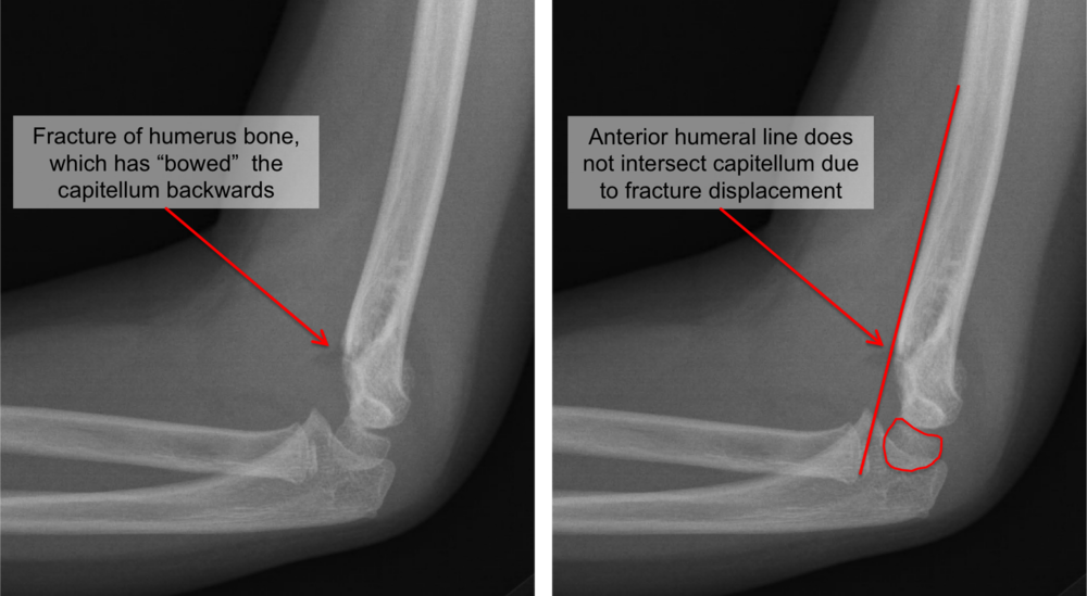 Lateral (side) x-rays of an elbow in a child. These show an angulated, or displaced, supracondylar humerus fracture. With this degree of angulation, surgery is usually recommended.