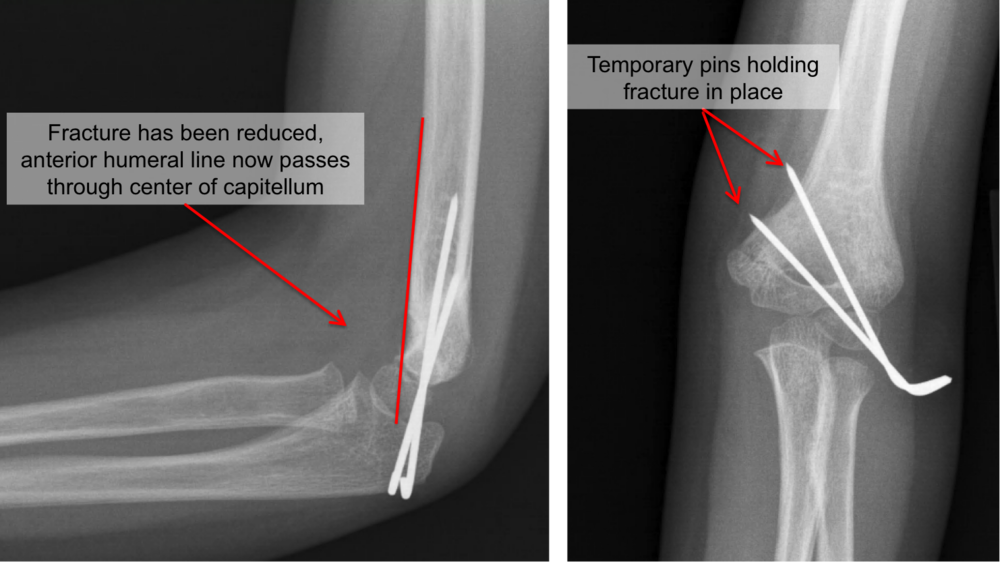 X-rays (lateral and AP) of a supracondylar humerus fractured treated with a reduction (setting of the bone), with placement of pins through the skin to hold the bone in proper alignment. A cast is placed for ~3 weeks, and the pins are removed in the office.