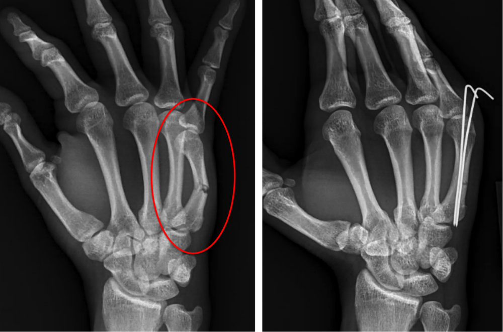 Fracture of the 5th (small finger) metacarpal bone.  When hand fractures are notably bent, or mal-rotated, surgery may improve alignment and motion of the finger.  The images here show a small outpatient procedure. The fracture is reduced, or lined up, by manipulating the hand (no incision made).  Next, 2 temporary pins pins are placed though the skin to hold the alignment during fracture healing.  The pins are typically removed in the office 2-3 weeks after being placed.  Motion is started at that point.  More vigorous activities, such as lifting and strengthening, are started ~6 weeks after surgery.