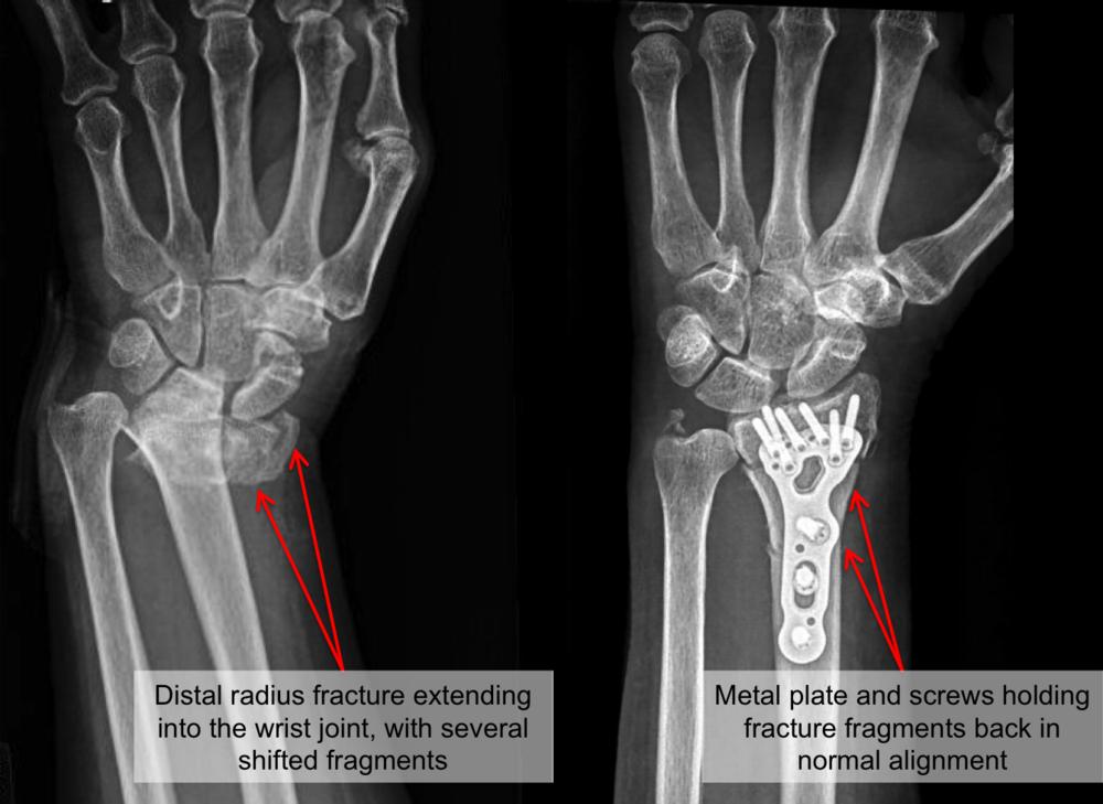 distal radius fracture 2.png