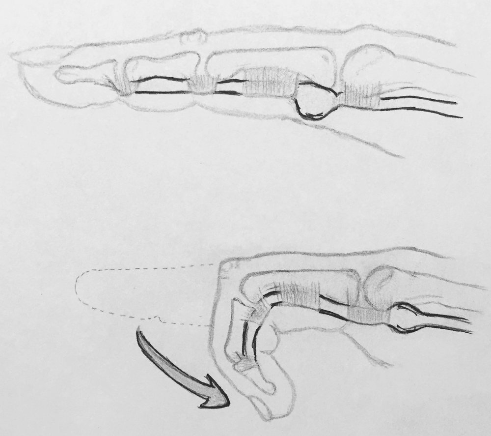 """Trigger fingers are caused by swelling of the tendons that bend the finger. During normal motion, the swollen portion of the tendon can get caught between the """"pulleys"""" that guide normal motion, causing pain and catching."""