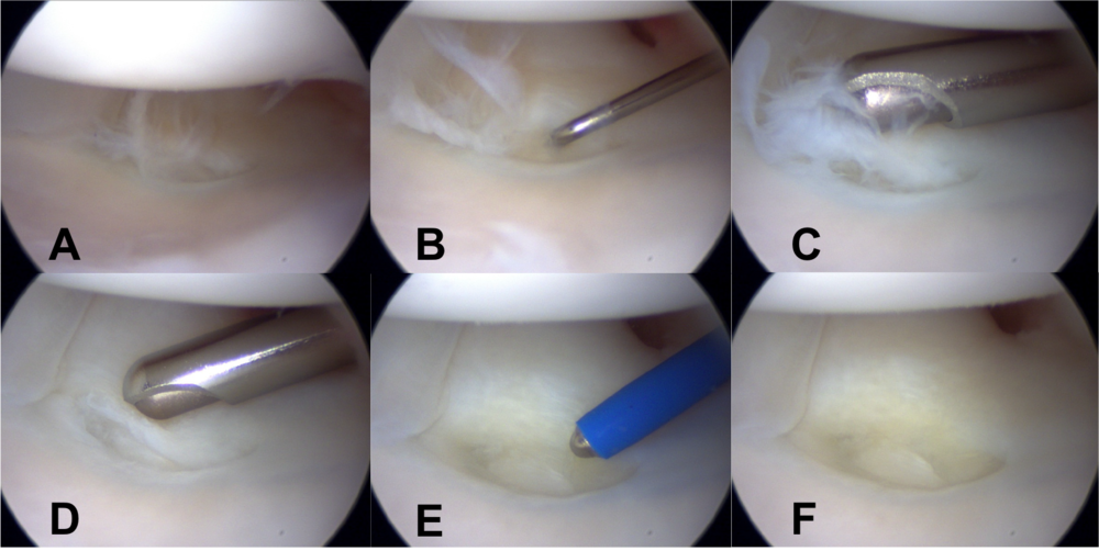 """A. Tear in the central portion of TFCC with fraying of the edges   B. Probe placed in the TFCC tear   C. Shaver inserted to trim torn edges from TFCC tear   D. Edges of TFCC tear trimmed to a stable rim   E. Cautery inserted to gently """"carmelize"""" and stabilize the periphery of the tear   F. At completion of procedure, edges of TFCC tear are trimmed and cauterized to minimize risk of future tearing or fraying"""