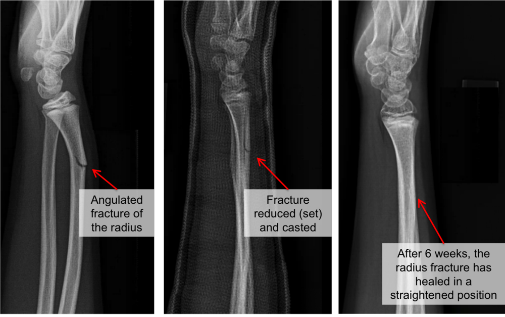 Angulated fracture of the radius bone, which was set (reduced) to eliminate the bend. The arm was casted for 6 weeks, which allowed the radius to heal in a normal position.