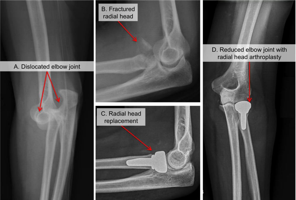 Elbow Dislocation Raleigh Hand Surgery Joseph J Schreiber Md
