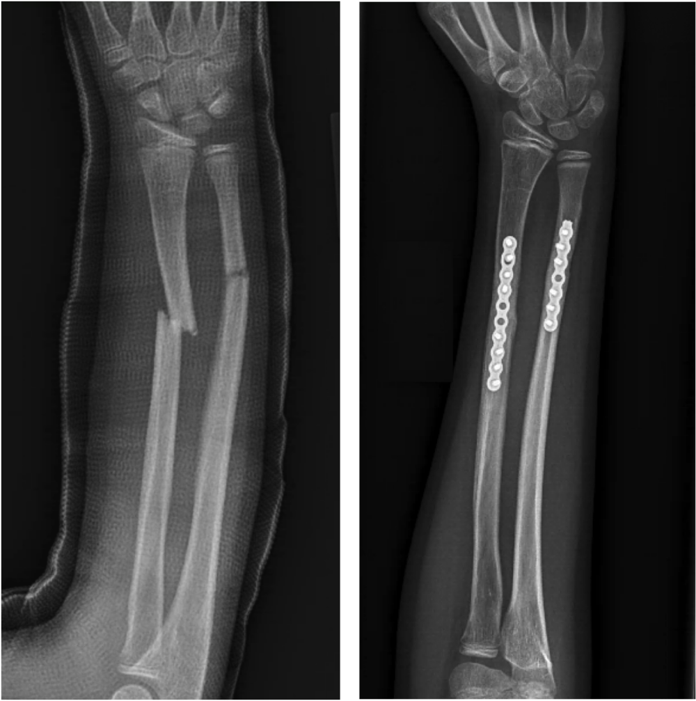 Example 2.  This child had fractured the forearm 3 times through the same location over a 2 year period. Another attempt was made at reducing/setting and casting. Unfortunately, given the obliquity (sloped angle) of the fracture, it continued to slide. A decision was made to align the broken forearm and hold in place with a metal plate and screws.