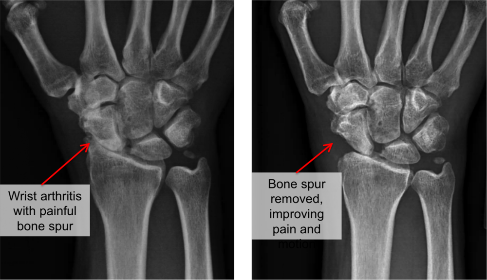 In early stages of wrist arthritis, a proximal row carpectomy or wrist fusion can sometimes be avoided. In this patient with early SLAC (scapho-lunate advanced collapse) degenerative changes, a radial styloidectomy was performed with a wrist denervation. This removed the large bone spur at the end of the radial styloid, and resulted in significant improvement in pain and motion.
