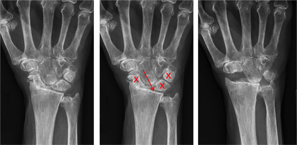 """Left:  Wrist osteoarthritis seen on X-ray. This pattern of arthritis is known as a SLAC (scapho-lunate advanced collapse) wrist. This is due to a torn ligament between the scaphoid and lunate bones.  Middle:  Surgical treatment involves removing a row of arthritic bones from the wrist. This is called a """"proximal row carpectomy"""". The bones marked with an """"x"""" are removed. The remaining, non-arthritic bones, slide into the space created and make a new wrist joint.  Right:  Same patient after a proximal row carpectomy was performed, with excellent clinical results and near complete improvement in pain."""