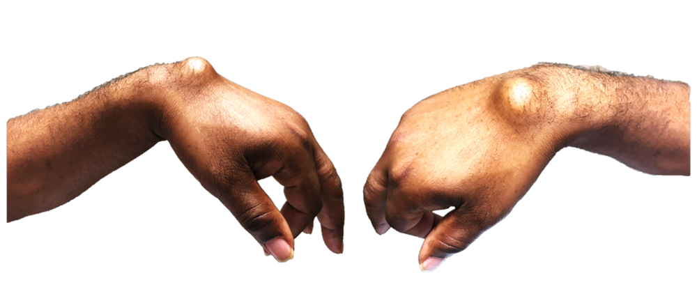 Dorsal wrist ganglion cyst