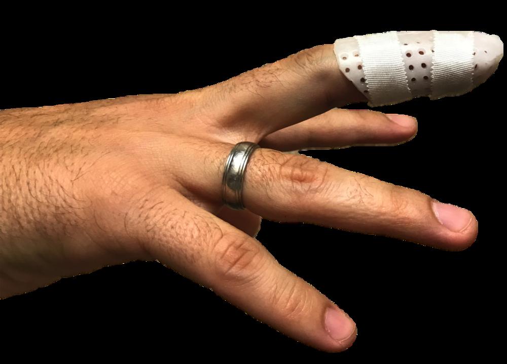 Bony mallet finger splint