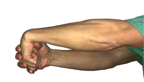 Wrist extensor stretches for tennis elbow.