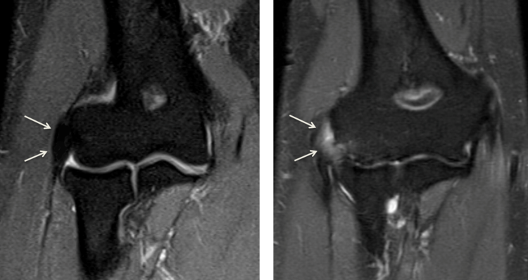 On the left shows a normal extensor tendon of the elbow. Notice the tendon (black on MRI) inserting into the bone. On the right shows a torn tendon. The tendon does not attach into the bone. Inflammatory tissue (white on MRI) blocks the tendon from healing back to the bone.