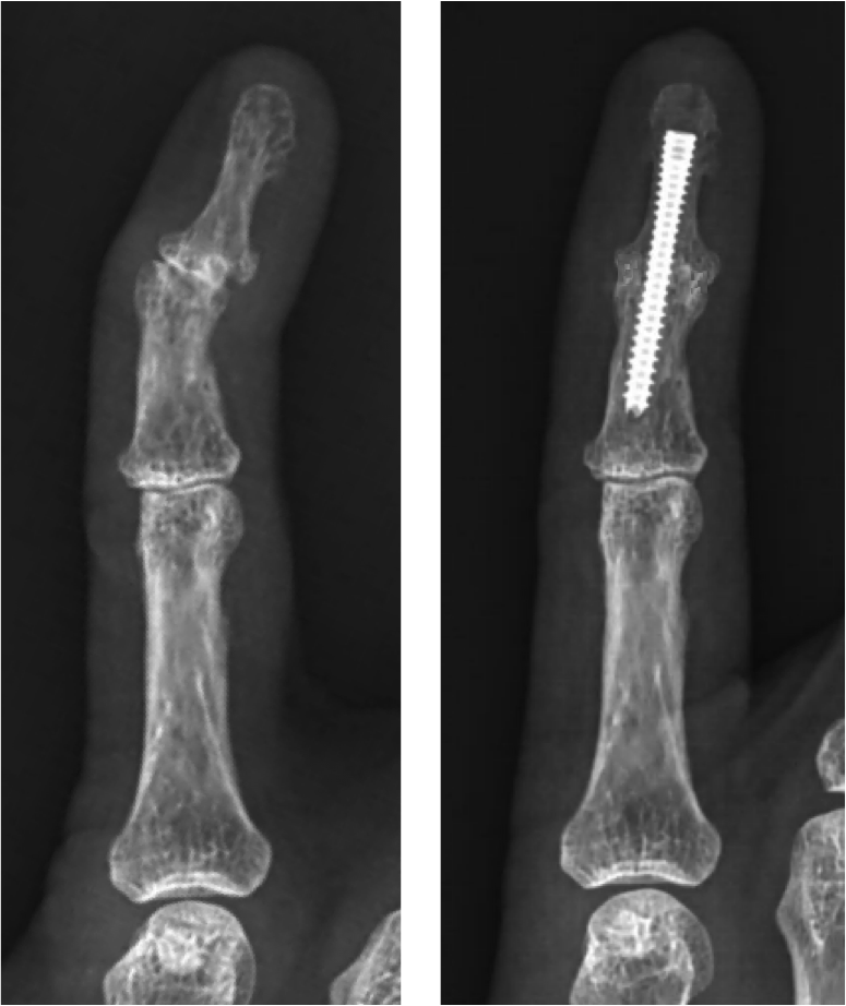 Distal interphalangeal (DIP) joint arthrodesis.  A DIP joint arthrodesis is a common procedure for finger arthritis. The DIP joint is the joint nearest the fingernail. When there is significant pain and deformity in the joint (see x-ray on the left), a fusion can be an excellent option. By placing a screw across the joint (see x-ray on the right), the deformity (or crooked appearance) of the joint can be improved. By preventing motion, pain can significantly decrease. After the procedure, a splint is oftentimes used for ~6 weeks to allow the bones to fuse together.