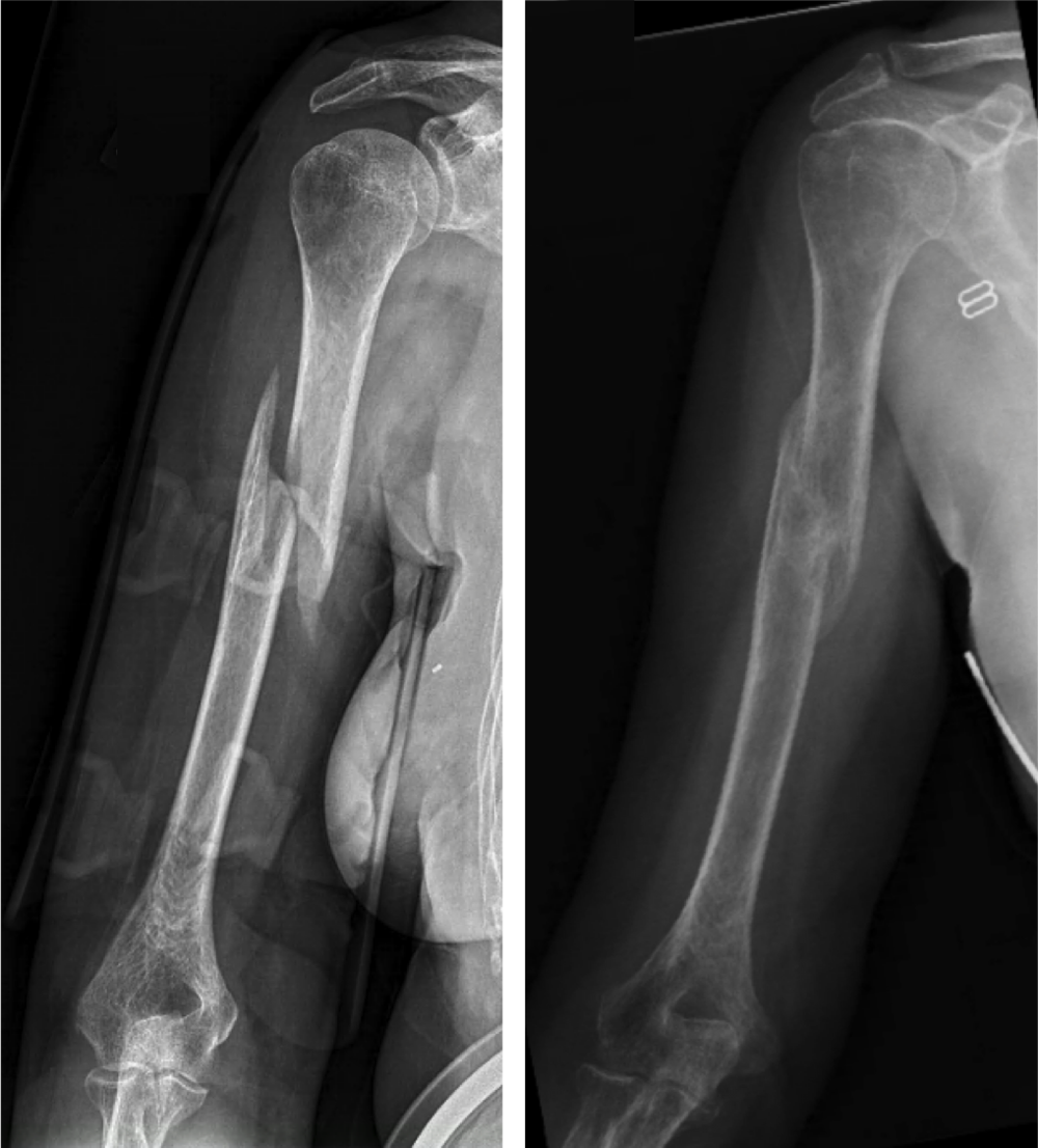 "Non-surgical treatment with a brace.  Many humerus fractures can be treated without surgery. The humerus shaft fracture above was successfully treated in a ""Sarmiento brace"", which wraps around the upper arm and holds the bone aligned while it heals."