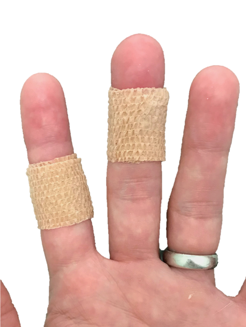 Placing CoBan tape, or a Band-Aid around the joint creases can limit flexion and decrease triggering, which can allow tendon swelling to subside.