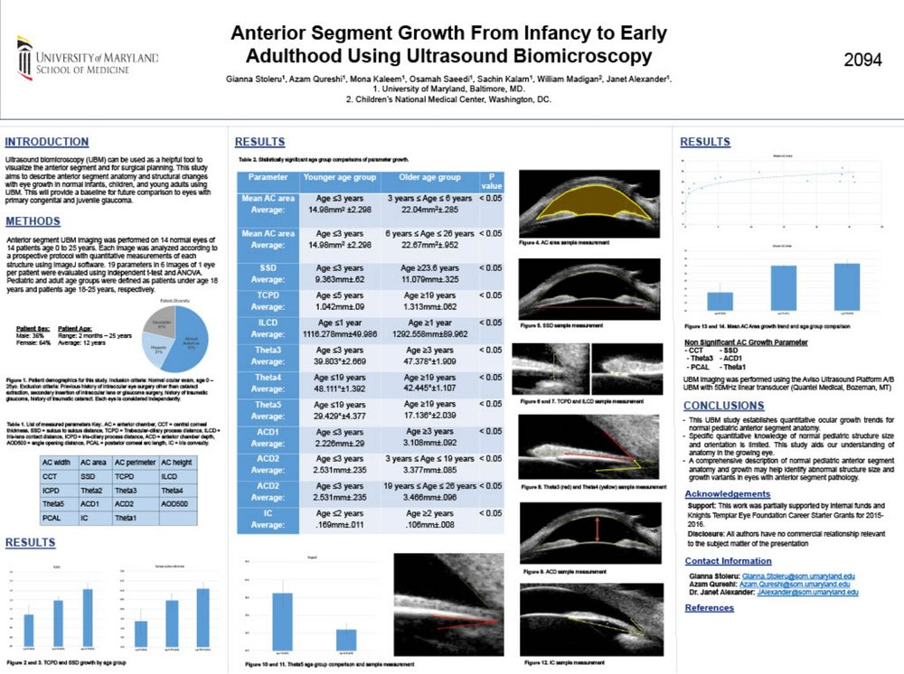 ARVO 2017  Title: Anterior Segment Growth From Infancy to EarlyAdulthood Using Ultrasound Biomicroscopy