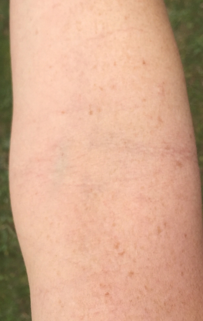 My arm after