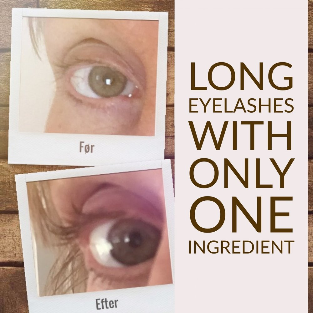 How To Naturally Increase The Amount Of Eyelashes With One Remedy