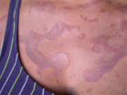 Patterns of skin rashes that cleared during detoxification