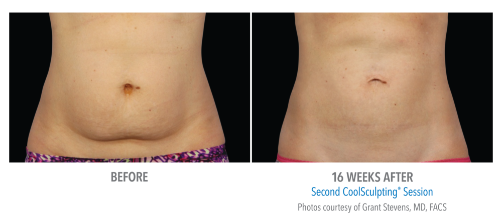 CoolSculpt results 3.png