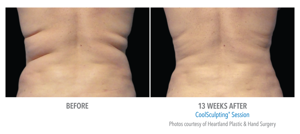 CoolSculpt results 1.png