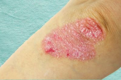 - Psoriasis is an immune disease that affects the skin, joints, and other parts of the body.