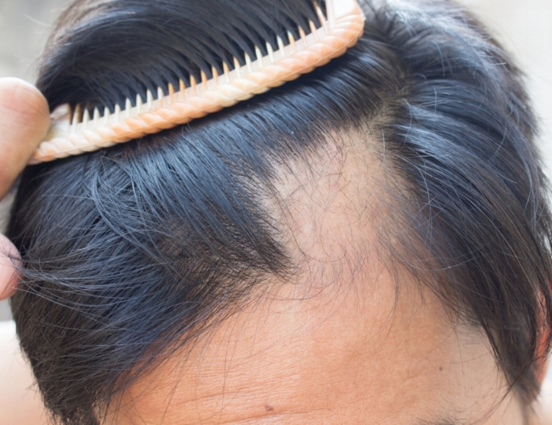 Alopecia Areata in Houston