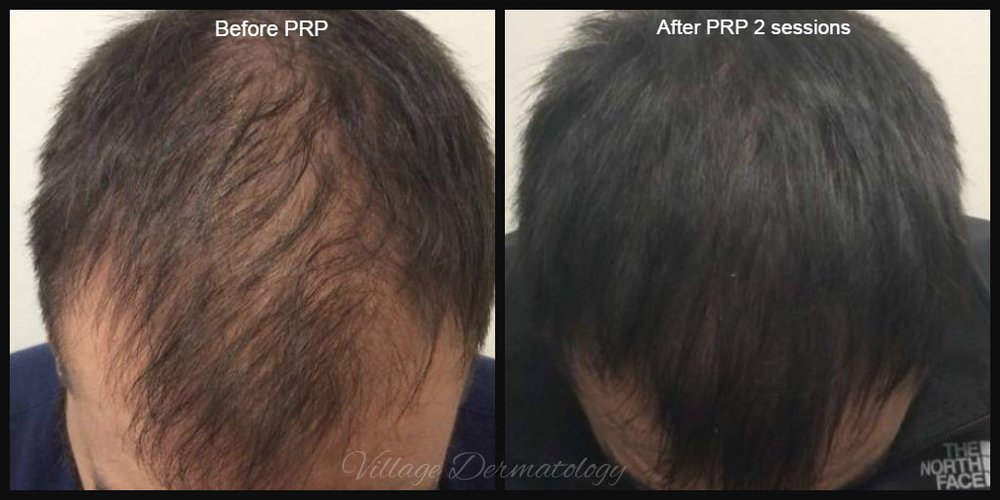 Prp Before And Afters Village Dermatology