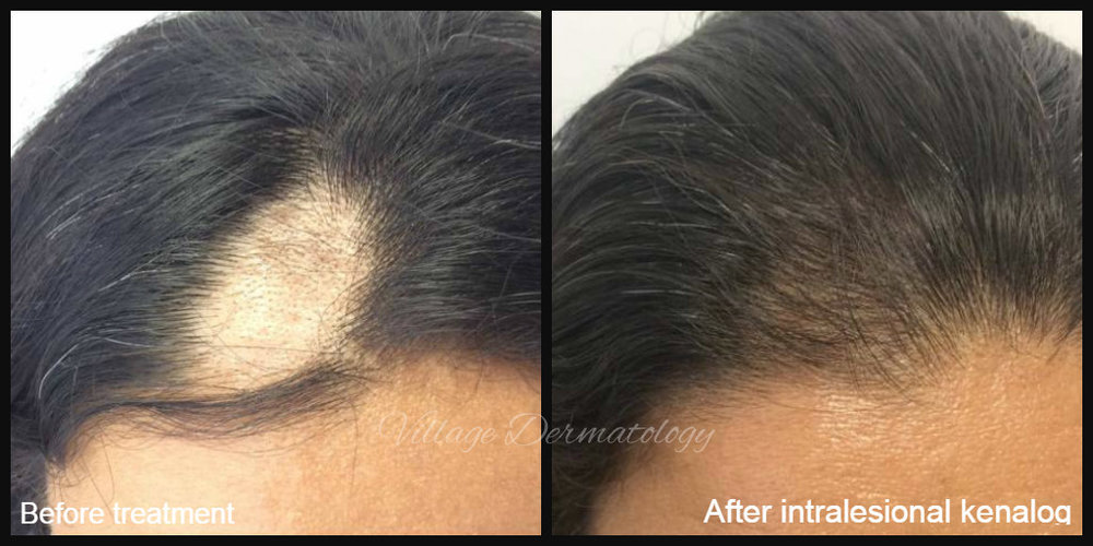 Alopecia areata before and after - This patient had rapid onset of a patch of hair loss at the front of her scalp. She was treated with 3 sessions of intralesional corticosteroids which resulted in dramatic improvement in the area of hair loss.