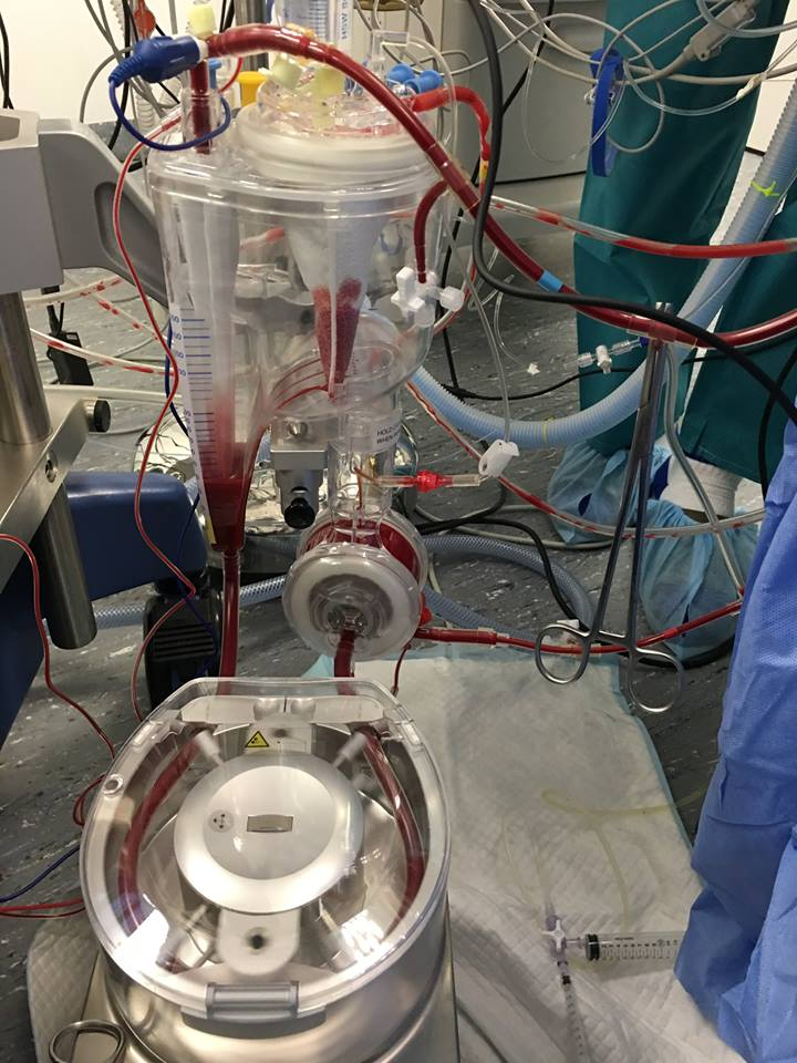 The CPB Machine.  Oxygenator above, to replace lung function, Main Pump below, to replace heart function.   Photo courtesy of Dr. Sabine Bozon