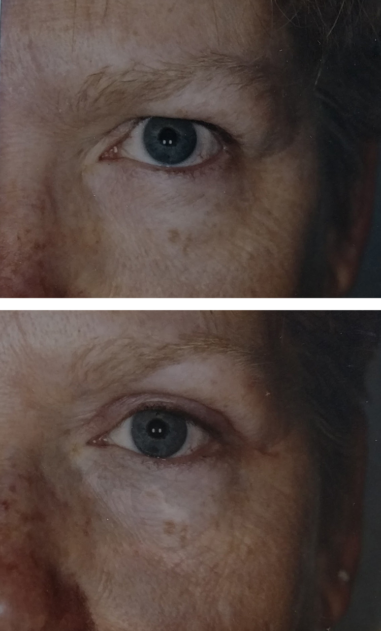 Blepharoplasty/eyelid tuck before & after