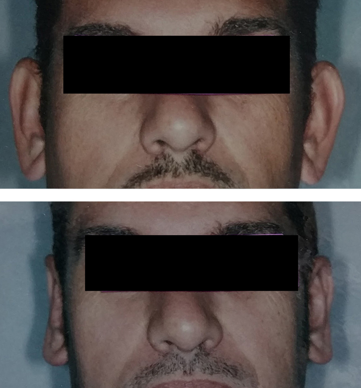 Otoplasty/ear-shaping on an adult before & after