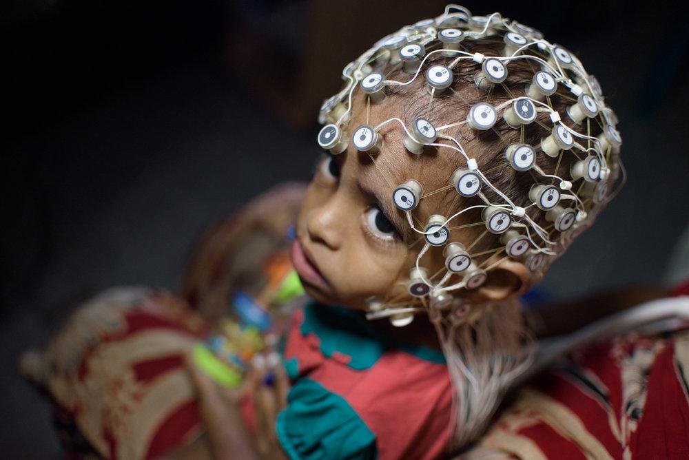 SMITA SHARMA  |   www.smitasharma.com   |   @smitashrm   In Dhaka, a child undergoes electroencephalography to measure electrical brain activity.  [ The Guardian ]