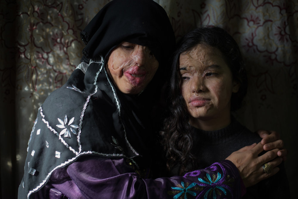 HADEER MAHMOUD  www.hadeermahmoud.com  |  @hadeermahmoud1   Eman, a woman who faced malformation by her husband. Eman and her daughter who is 13 years old were attacked with acid after she fill for divorce.