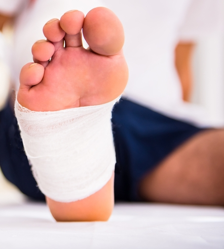 wound care treatment podiatrist mantzoukasbath beach brooklyn ny