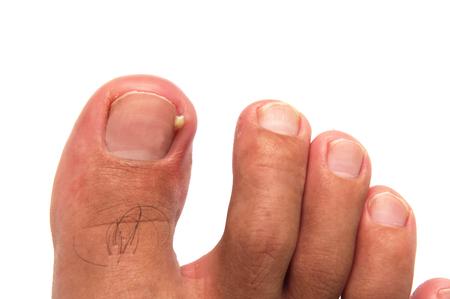 61379021_S_infection_ingrown_toenail_man_foot_puss_yellow_pain.jpg