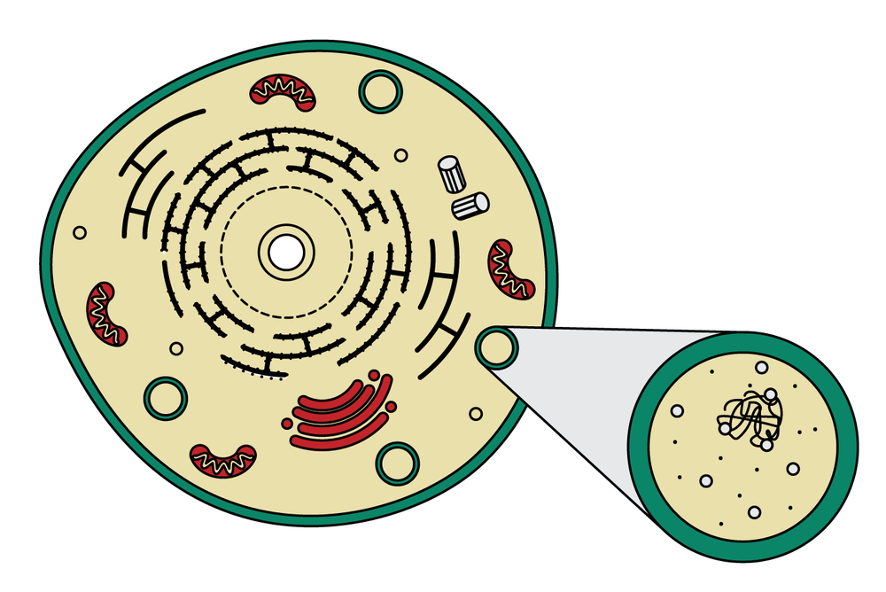 Figure 1: A visual representation of a Gaucher cell.