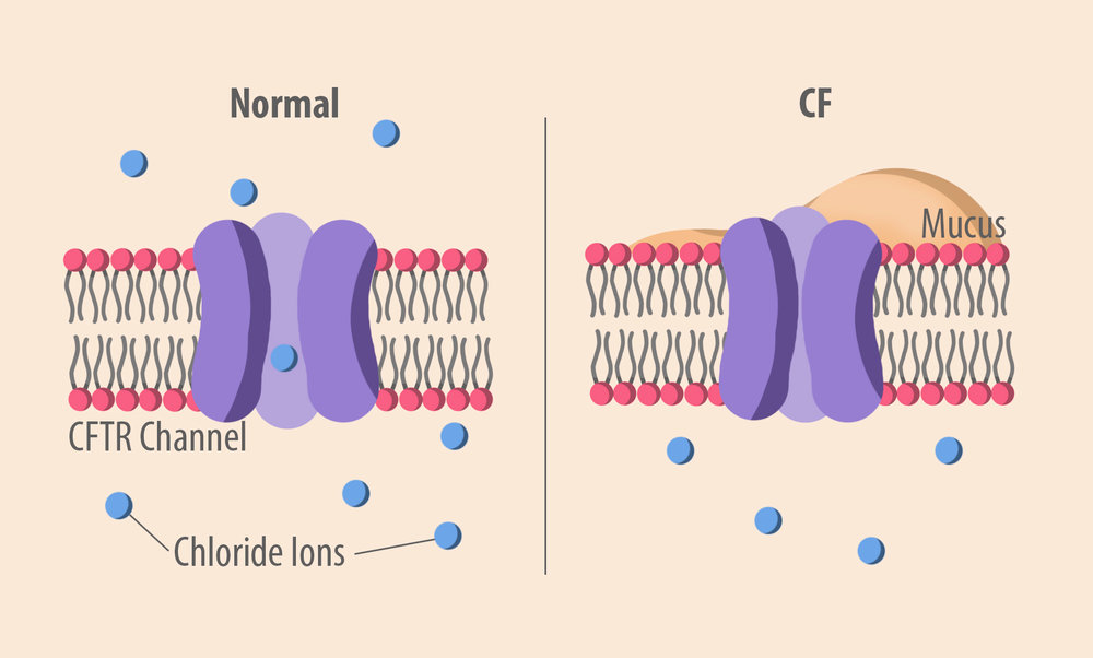 Figure 1: A dysfunctional anion channel, which causes the CF pathology.